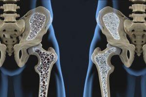 recive.ir | ۹ توصیه غذایی ساده برای جلوگیری از ابتلا به پوکی استخوان